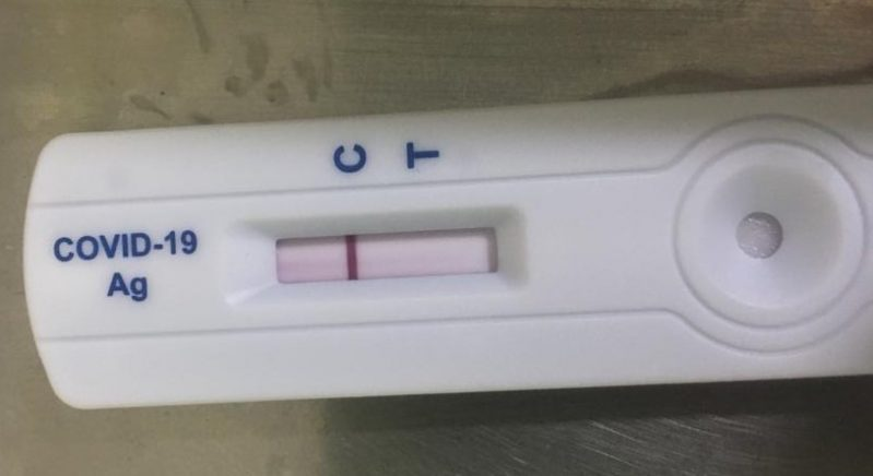 Test ràpid d'antígens